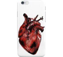 Anatomical Heart Illustration  iPhone Case/Skin