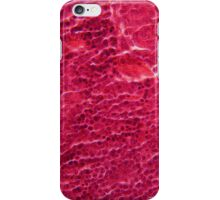 A section trough pancreas cells under the microscope. iPhone Case/Skin