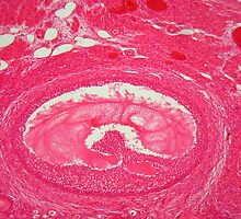 Ovary tissue under the microscope. by Zosimus