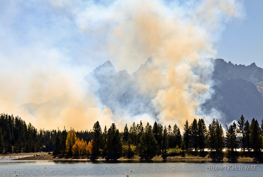 Fires in Grand Teton by Robert Kelch, M.D.
