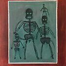 Sock Monkey Family X ray by Randy  Burns