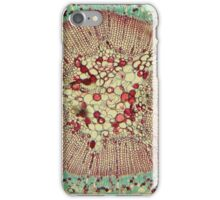 Microscopic Image 2 - Scientist iPhone Case/Skin