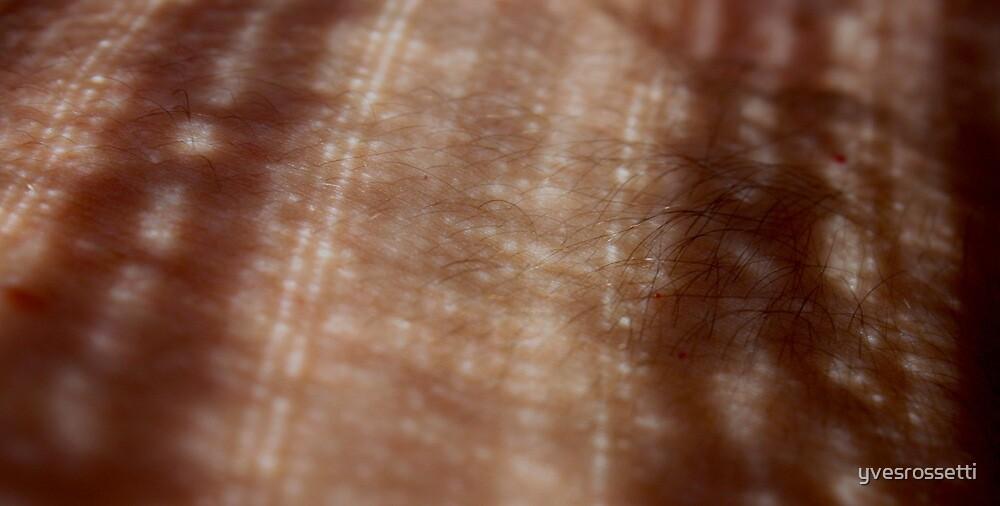 skin lace by yvesrossetti