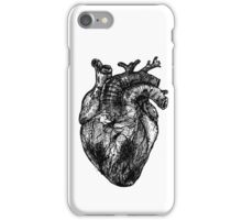 My Black Heart iPhone Case/Skin