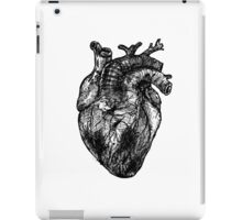 My Black Heart iPad Case/Skin
