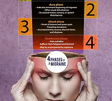 Fioricet Migraine Relief Infographic by johnsmith12345
