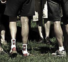 Hill Climbing Legs by Judith Cahill