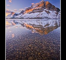 Bow Lake, Banff National Park by mountainpz