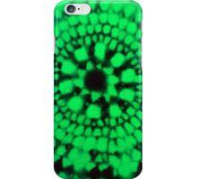 Scale Mandala 3 iPhone Case/Skin