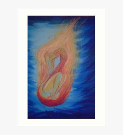 On fire - my mother's battle with cancer and radiation therapy Art Print