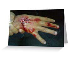 blood love hand pain Greeting Card