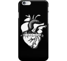 Jet Black Heart  iPhone Case/Skin