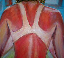 Sunburn by gillsart
