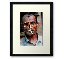 smoking effects Framed Print