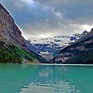 Lake Louise by Robert Goulet