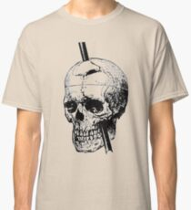 The Skull of Phineas Gage Vintage Illustration  Classic T-Shirt