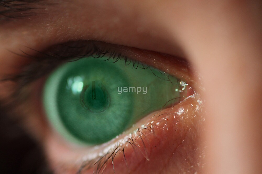 Turn off this green eyed monster! by yampy