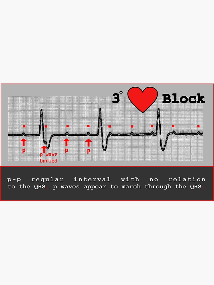 complete heart block Nursing Stickers  by thesoupdate