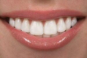 Best Dental Veneers Treatment in Delhi from Smileoracles by smileoracles