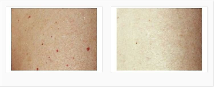 Laser Mole removal in virginia by Jeff Fraley