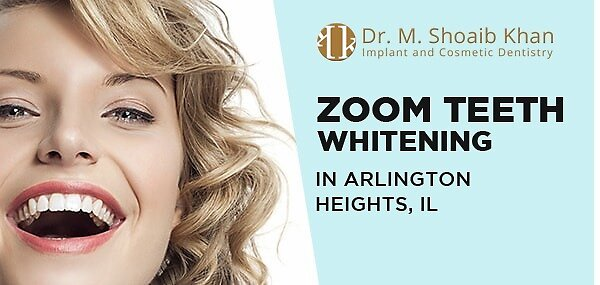 Zoom Teeth Whitening in Arlington Heights, IL by mshoaibus