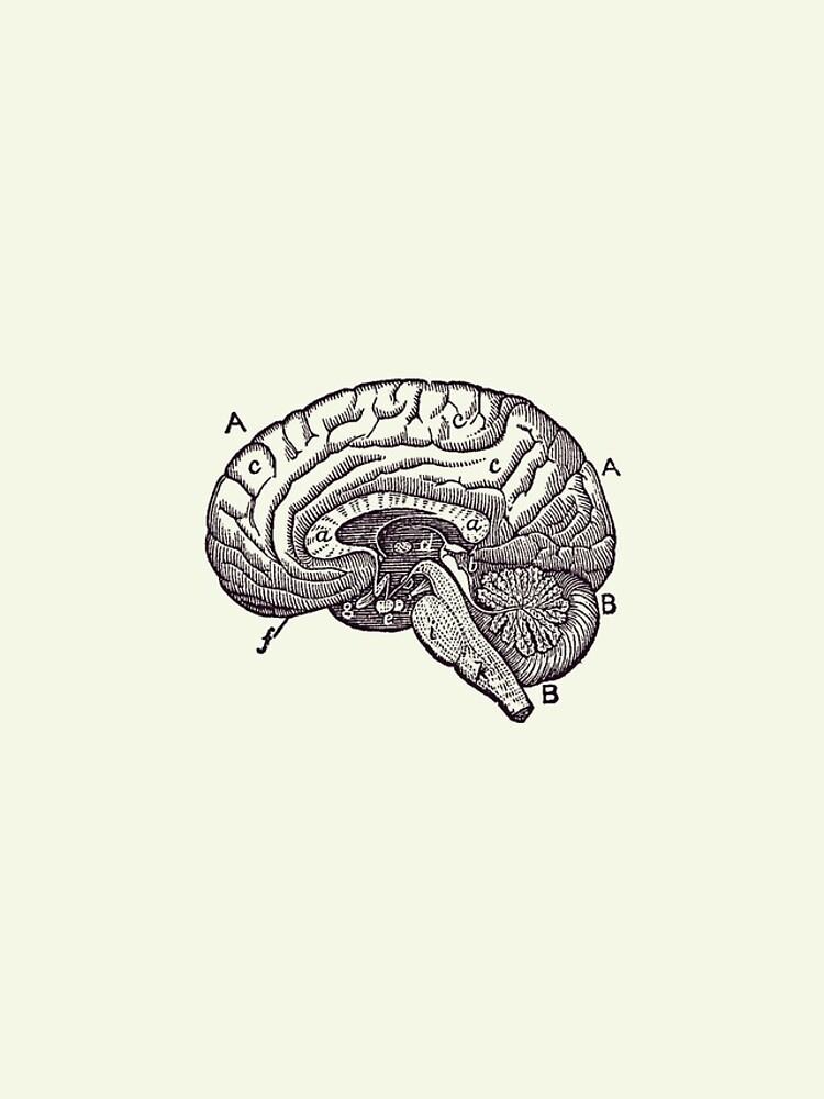 """Simple Brain Diagram - Anatomy Poster 2"" iPhone Case ..."