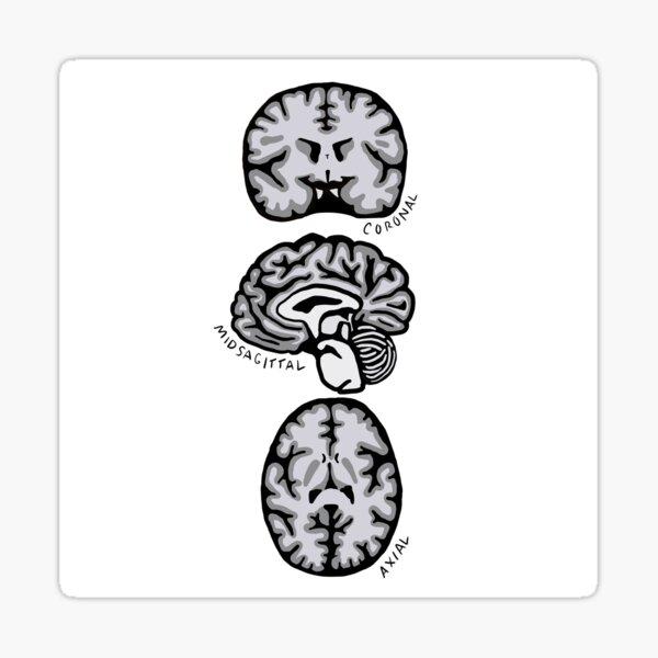 Brain Planes Sticker