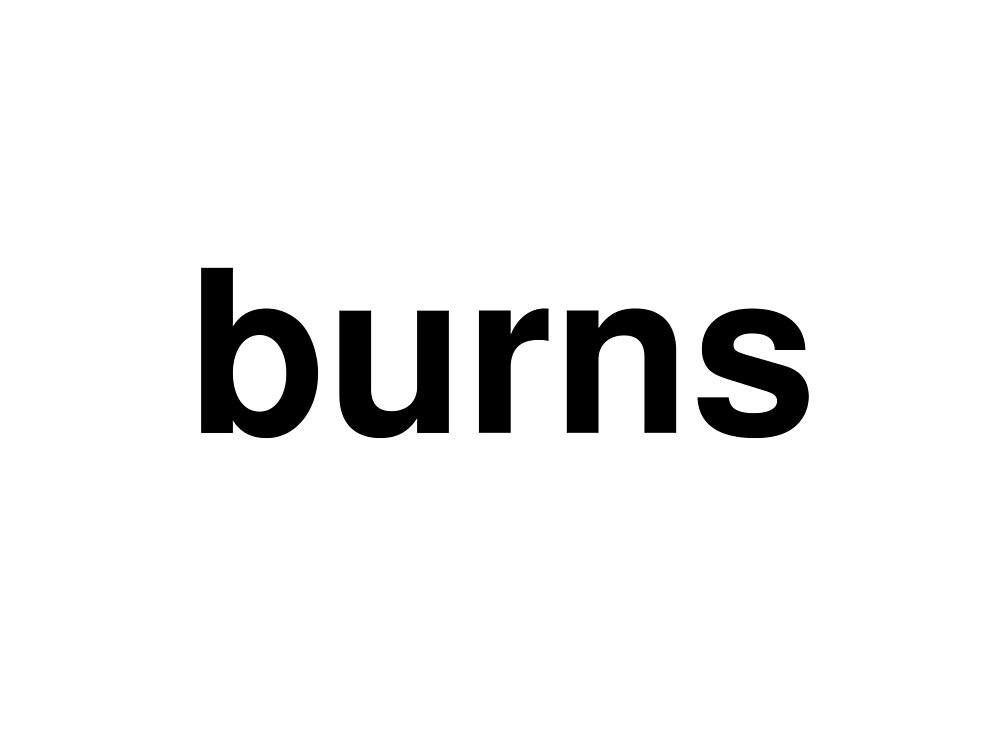 burns by ninov94