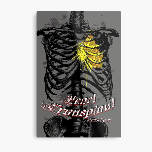Heart Transplant Metal Print