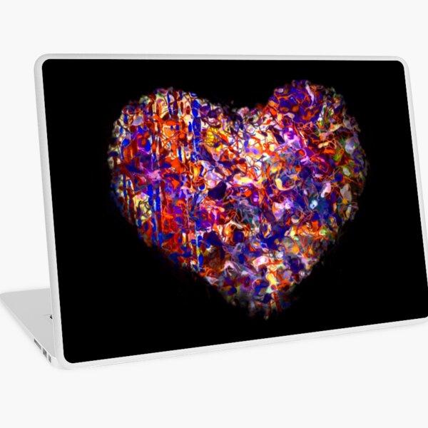Global Loving Laptop Skin