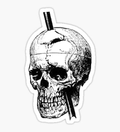 The Skull of Phineas Gage Vintage Illustration Vector Sticker