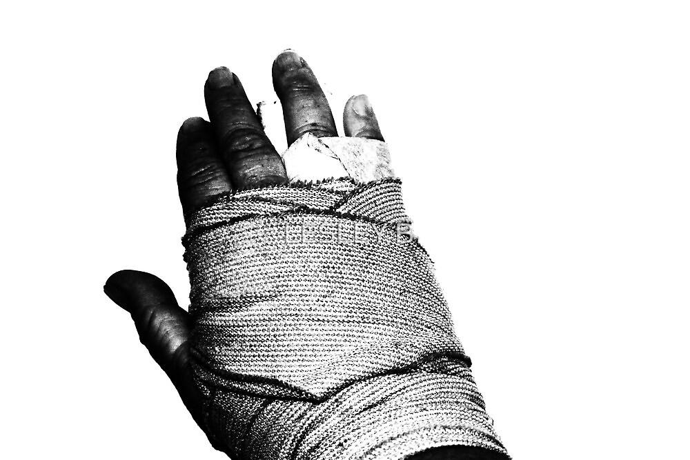 AAAAAAAAHHHHHHHHH ... Broken Hand ... by LESLEY BUtler