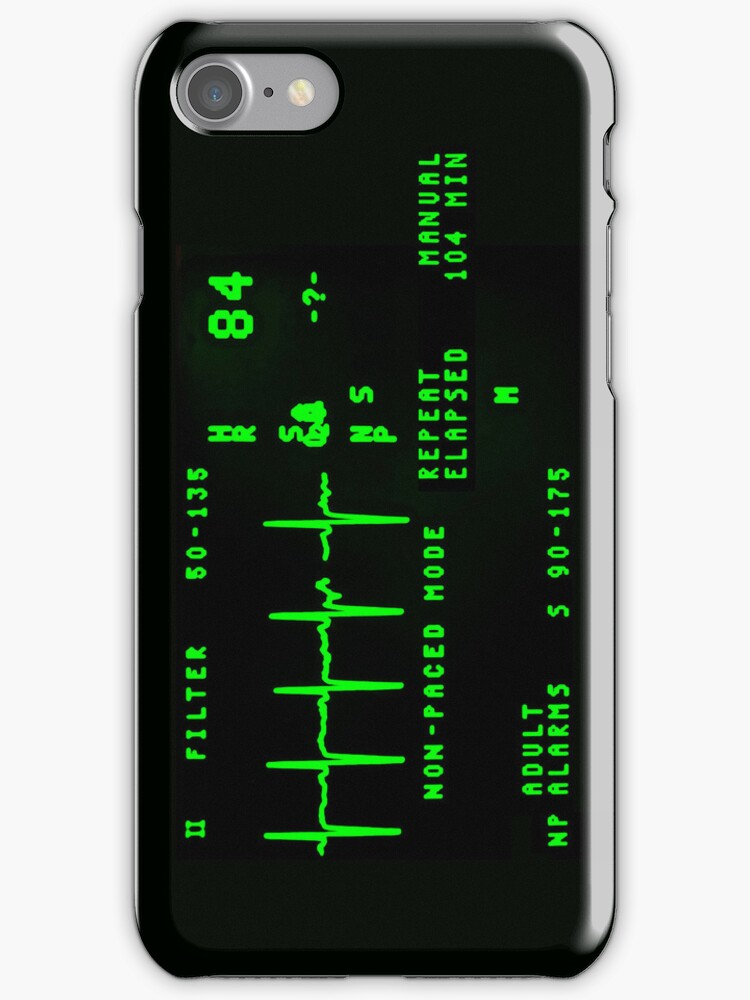 EKG Monitor by pixelman