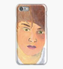 Boy with the Black Eye iPhone Case/Skin