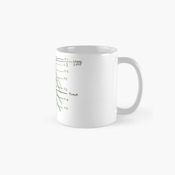 Greys - Spinal tumour Classic Mug
