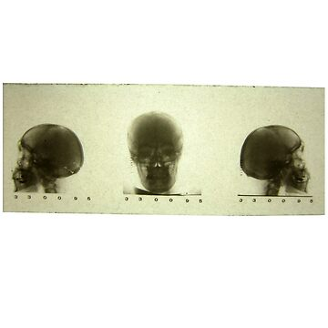 Three Skulls X-ray (actual 1960s x-ray) by nico37