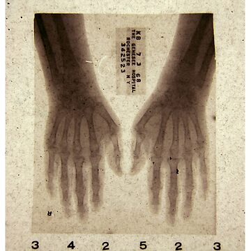 Hands X-ray 2 (actual 1960s x-ray) by nico37