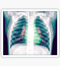 Chest x-ray of a 3 year old female baby Sticker
