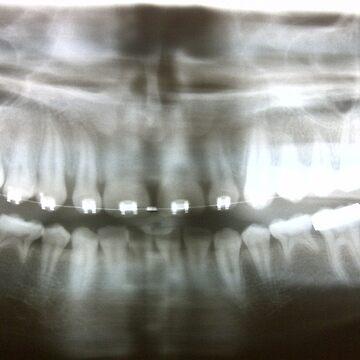 teeth x-ray by the-splinters