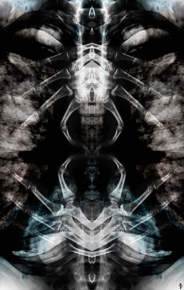 Invasive by Travis Duda