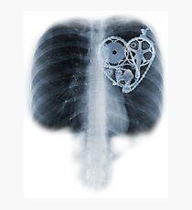 BiKE LOVE X Ray bicycle heart components Photographic Print