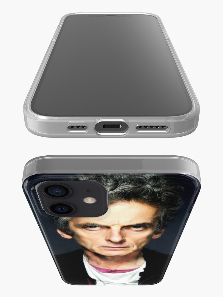 Alternate view of It's the Eyebrows iPhone Case & Cover