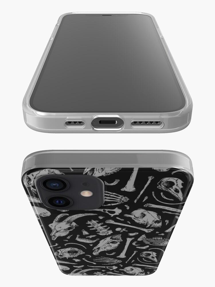 Alternate view of Bones iPhone Case & Cover