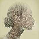 rhynoplasty 02 by Vin  Zzep