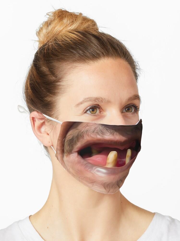 Hässlich zahnspange Zahnspange hässlich?:(