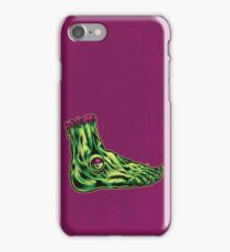 L is for Lucky Leprosy Leg iPhone Case/Skin