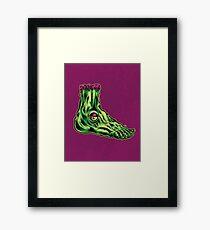 L is for Lucky Leprosy Leg Framed Print