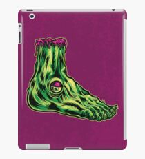 L is for Lucky Leprosy Leg iPad Case/Skin