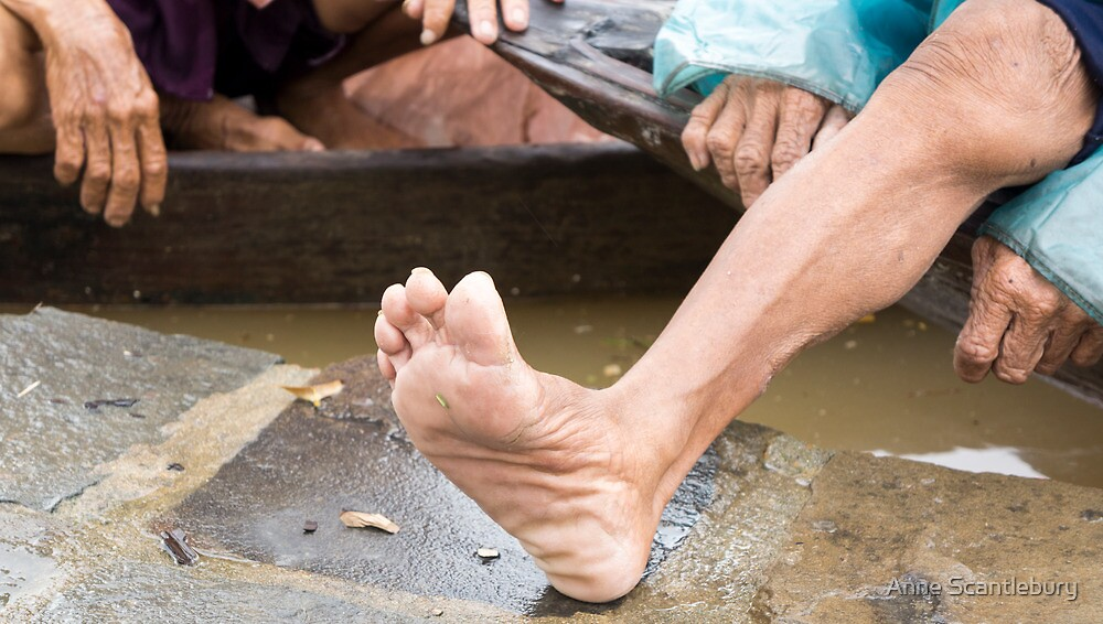 foot by Anne Scantlebury