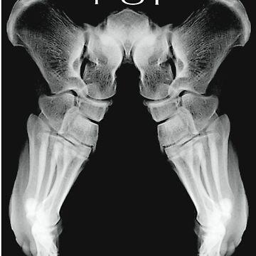 Xray-Feet  by Stinkyfut